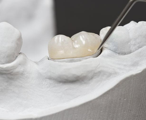 tooth overlays