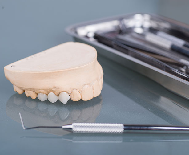 Types of tooth crowns