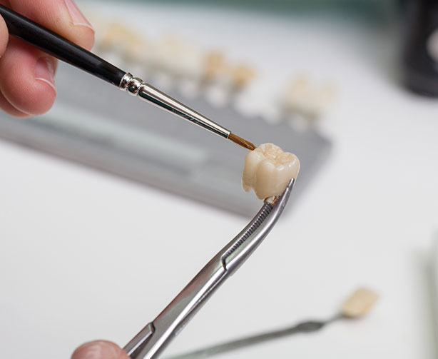 The art of tooth crowns