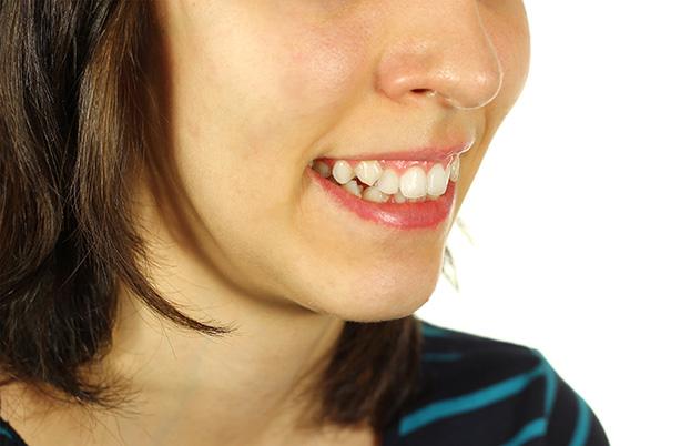 Cosmetic dentistry procedures crooked teeth