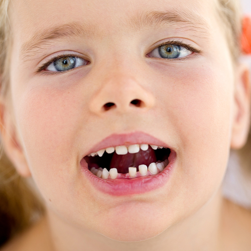 what age does a child lose their teeth