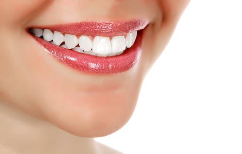 Teeth Bonding Barrie