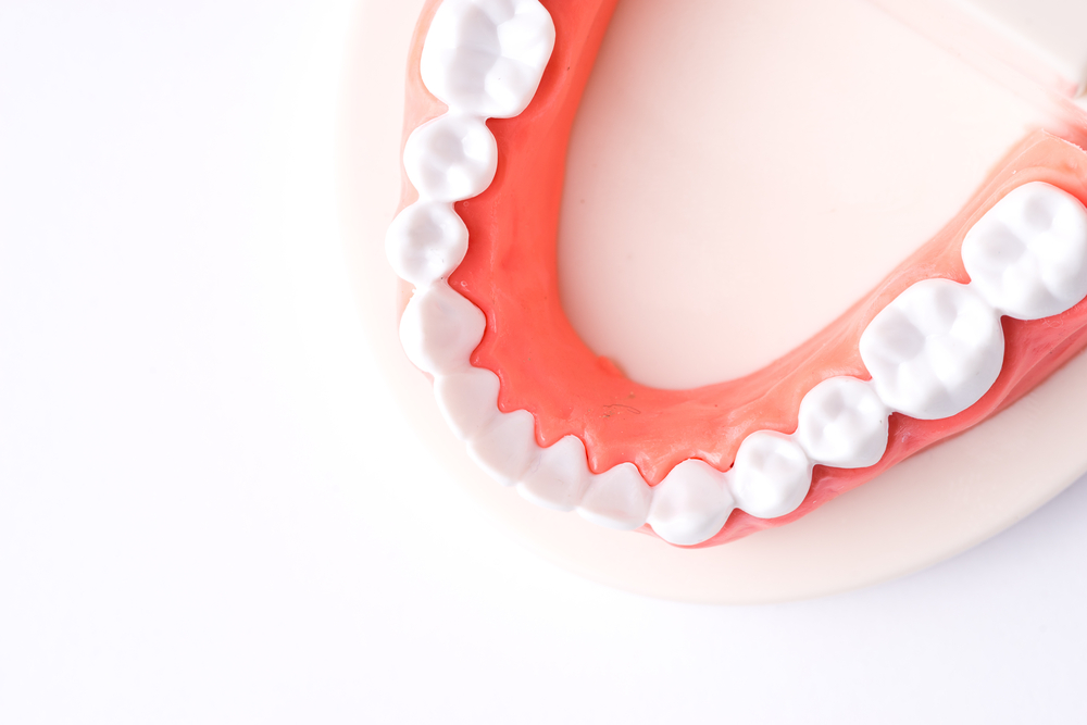 Tooth Implant Barrie