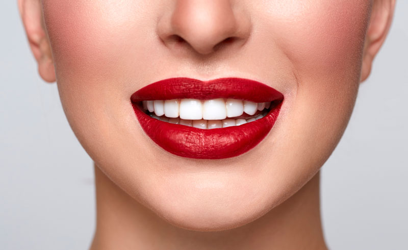 Can Porcelain Veneers be Whitened?