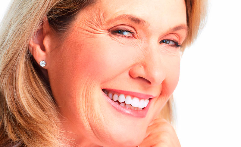 5 Smile Makeover Results for Your Smile