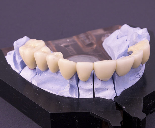 dental bridges in mold