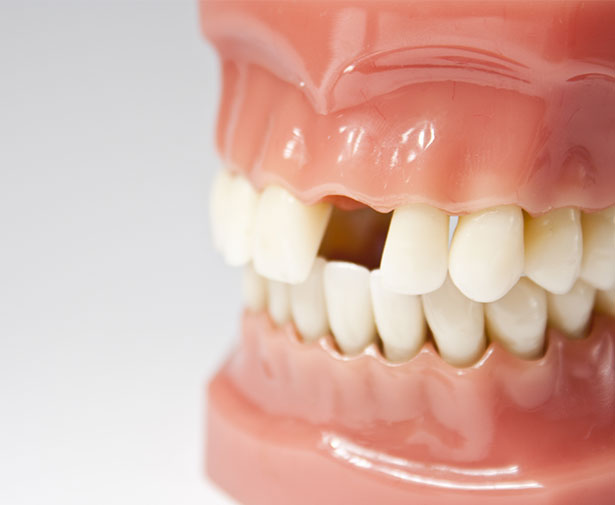 Missing tooth Example