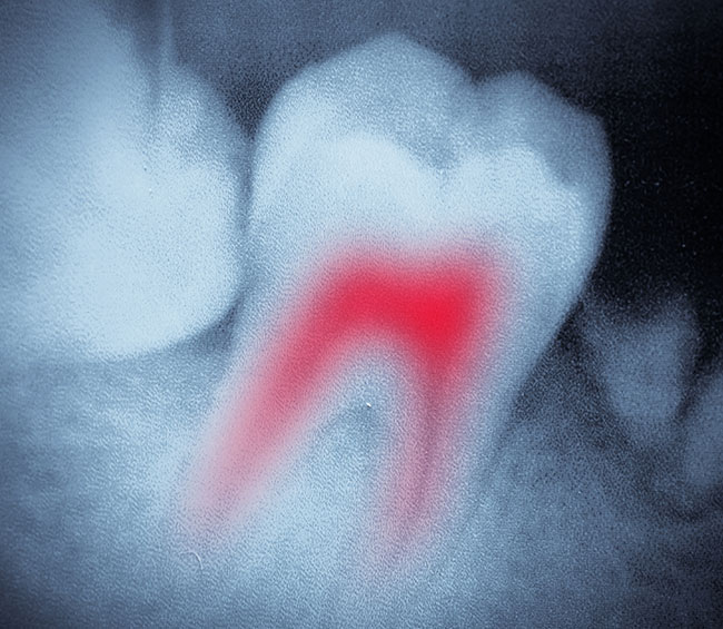 example of a tooth infection