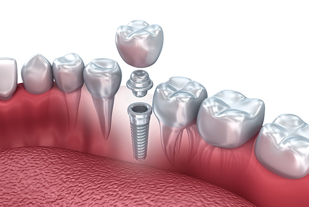 Cosmetic dentistry procedures dental implants