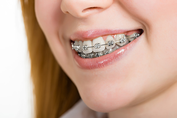 Cosmetic dentistry procedures braces