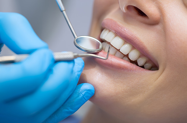 questions to ask a dental assistant
