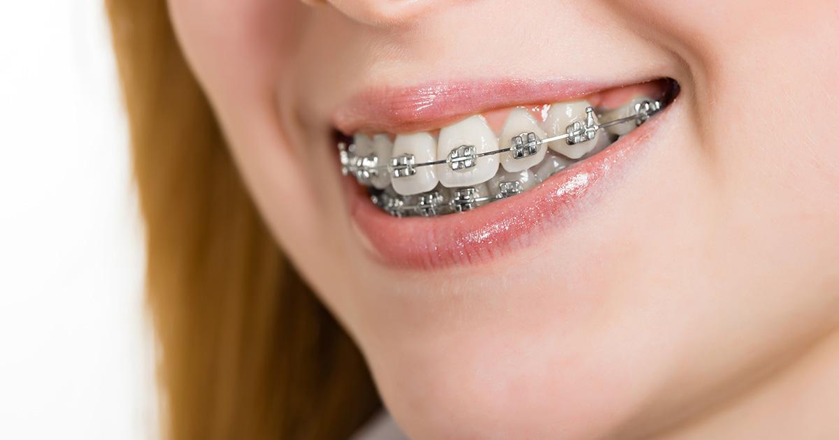 Cosmetic Dentistry Procedures braces