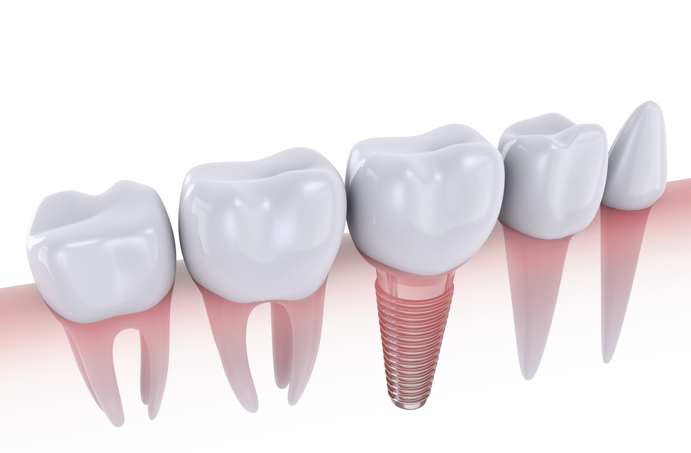 Barrie Dental Implants