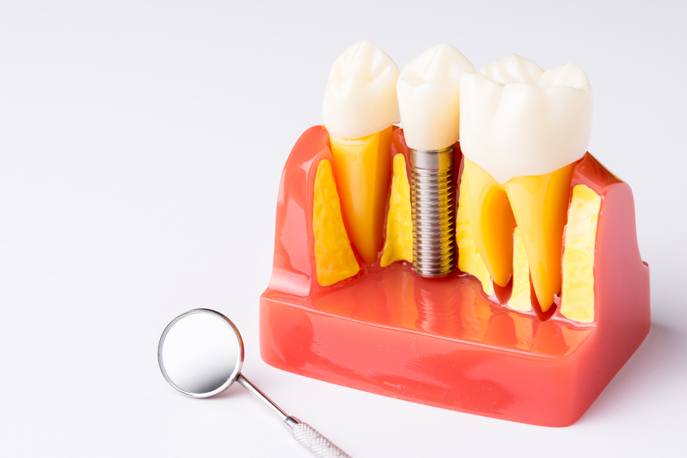 Dental Implant Barrie