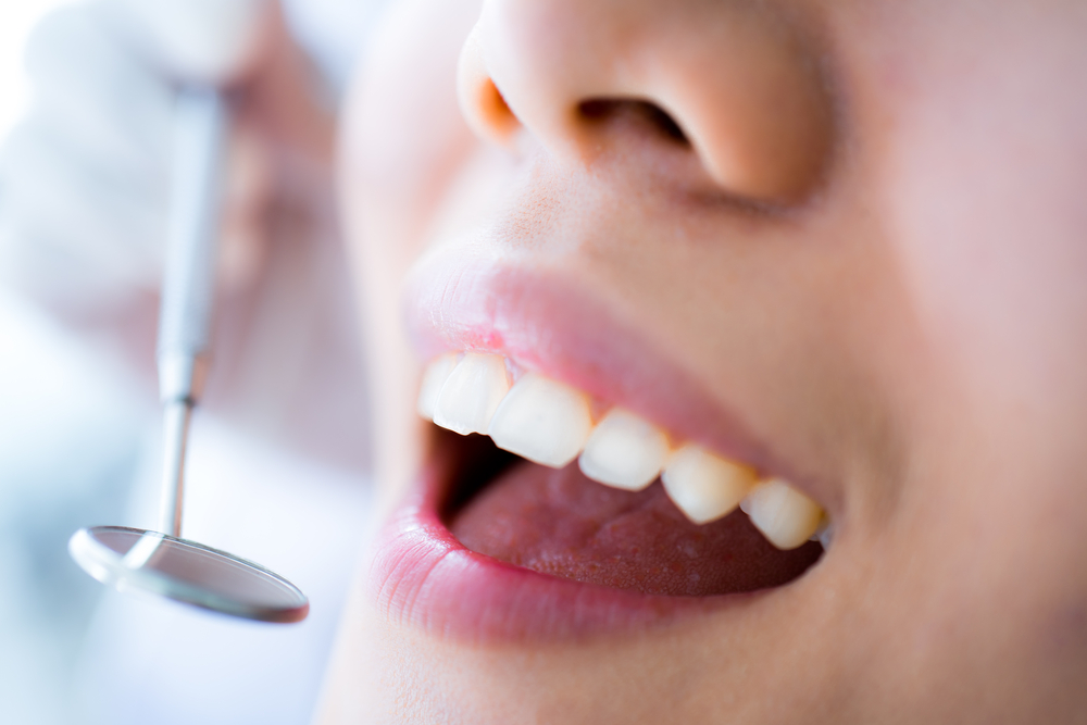 Dental Procedures Barrie