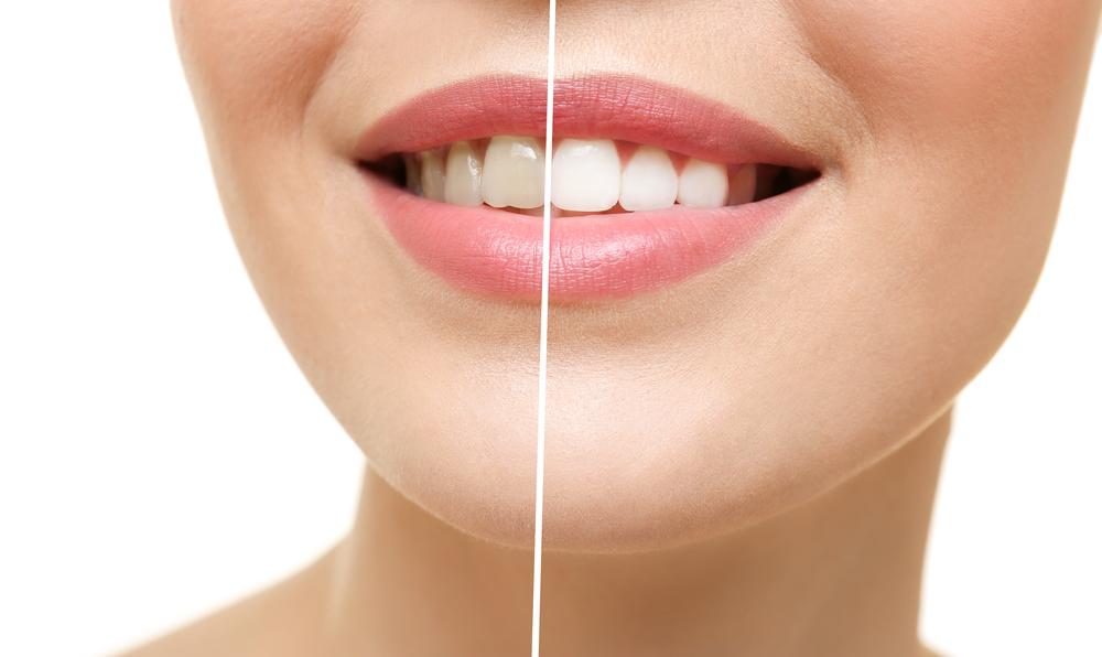teeth whitening Barrie
