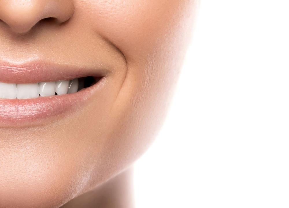 dental-contouring