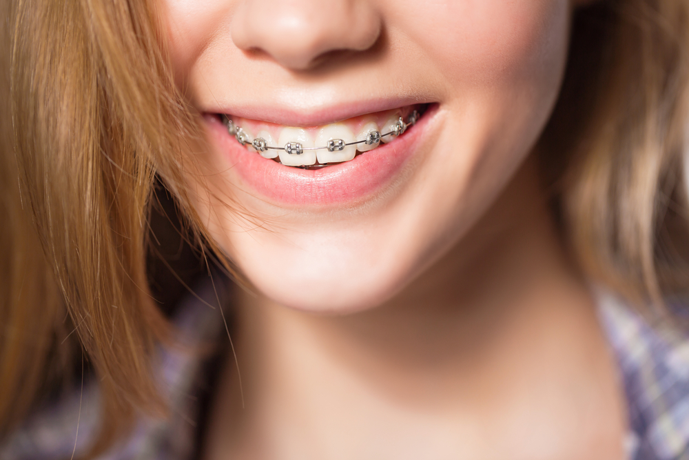 Invisalign-vs.-Braces-1