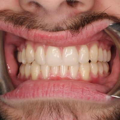 Invisalign-Before-After-Photos-05-01