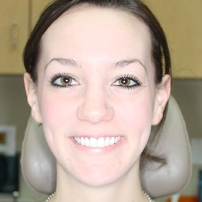 Smile-Makeover-Before-After-Photos-11-01