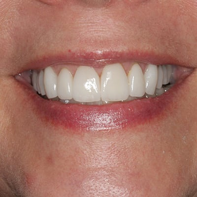 Smile-Makeover-Before-After-Photos-13-01