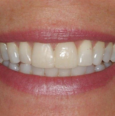 Smile-Makeover-Before-After-Photos-14-01