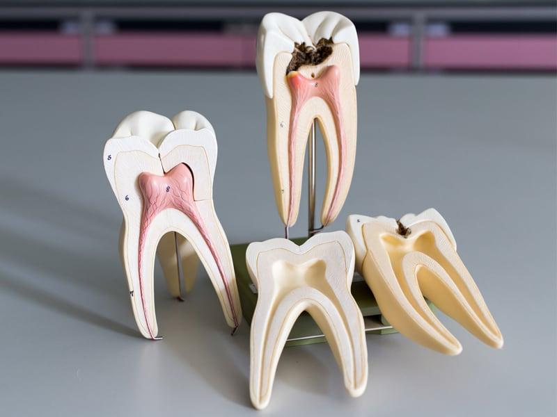 Пульпит зубов