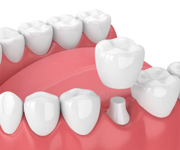 Dental-Crowns-Gallery