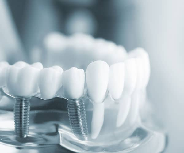 Dental-Implants-Gallery